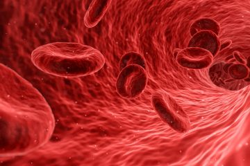 Averiguan cómo la leucemia linfoblástica aguda llega al sistema nervioso central
