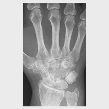 Los pacientes con artritis psoriásica reclaman una mejor atención médica