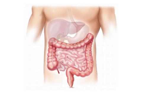 Un hongo de la piel puede jugar un papel en la enfermedad de Crohn
