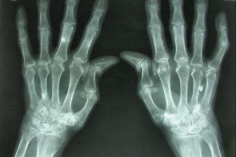 Diseñado un gel muy prometedor para el tratamiento de la artritis reumatoide