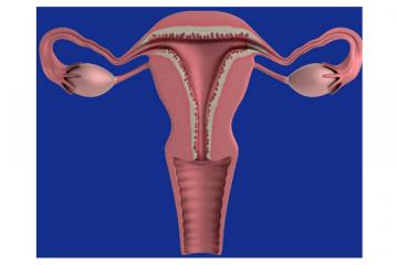 Identificado el origen de la mayoría de los cánceres de ovario: las trompas…