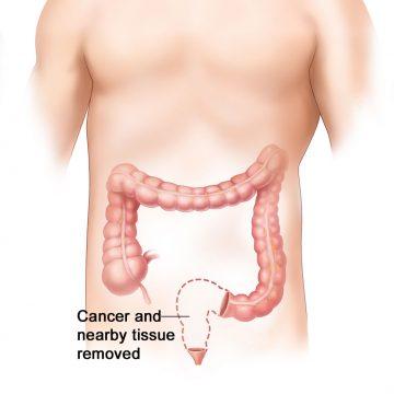 Un dúo bacteriano potencia la inflamación del colon y el…