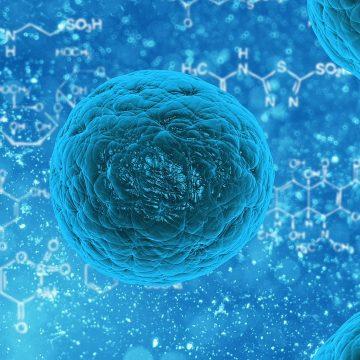 El trasplante de células madre cambia el escenario del tratamiento…