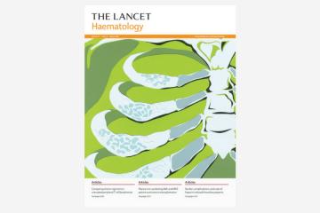 Exposure to Coxiella burnetii and risk of non-Hodgkin lymphoma: a retrospective population-based analysis…