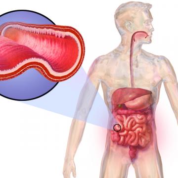 Más del 30% de personas con inflamación intestinal tienen otra…