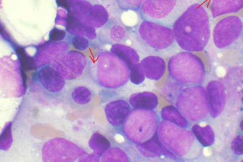 Identifican mutaciones que predicen el riesgo de leucemia mieloide aguda
