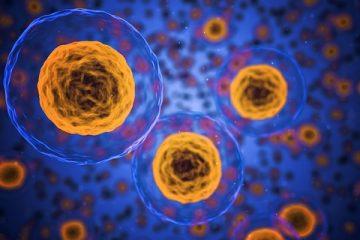 La evolución genética de células de la leucemia condiciona el pronóstico