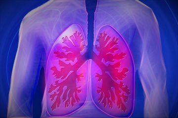 Una firma epigenética predice la respuesta de la inmunoterapia en cáncer de pulmón