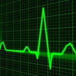 Relación entre riesgo cardiovascular y espondilitis anquilosante