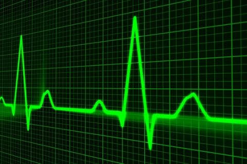 Los pacientes con espondilitis anquilosante tienen casi 3 veces más riesgo cardiovascular