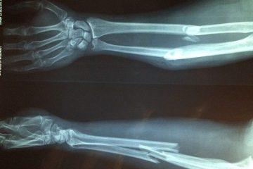 La SER se adhiere al Manifiesto por la prevención de las fracturas óseas