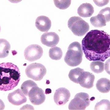 Nueva técnica para pronosticar la recaída en pacientes con leucemia…