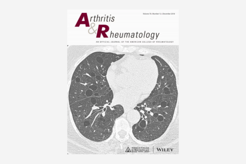 Prevalence and Characteristics of Persistent Clonal T Cell Large Granular Lymphocyte Expansions in Rheumatoid Arthritis