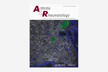 Influence of Disease Activity in Rheumatoid Arthritis on Radiographic Progression of Concomitant Interphalangeal…