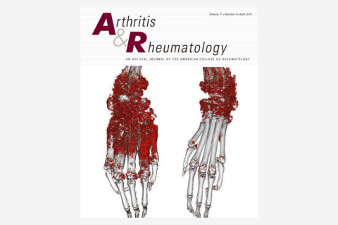 Identification of Novel Autoantibodies Associated With Psoriatic Arthritis