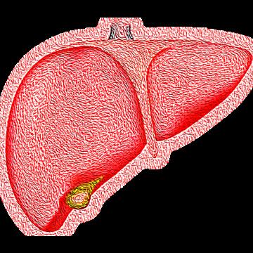 El tratamiento antiplaquetario frenaría la progresión de la esteatohepatitis a…