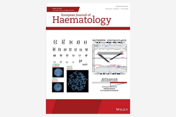 Survival in adult acute lymphoblastic leukaemia (ALL): A report from the Swedish ALL…