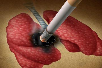 Los biomarcadores, protagonistas en la investigación de terapias para el cáncer de pulmón