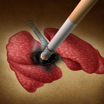 Los biomarcadores, protagonistas en la investigación de terapias para el…