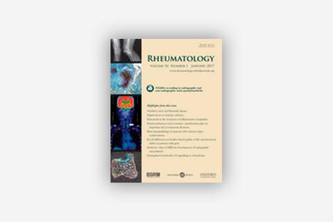 Ocular involvement in patients with spondyloarthritis