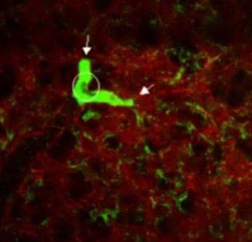 El pulmón, reservorio de la producción de plaquetas