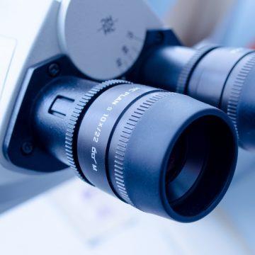 Nueva diana terapéutica para casos resistentes de cáncer de próstata