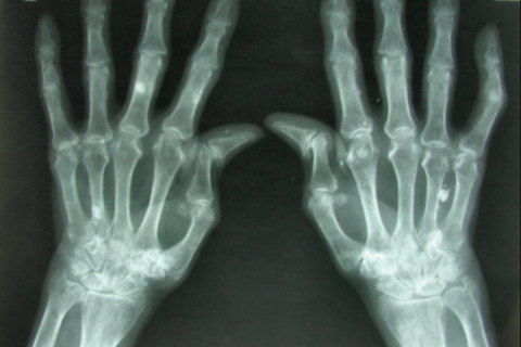 Nueva guía para mejorar la atención y reducir el impacto que provoca la artritis reumatoide