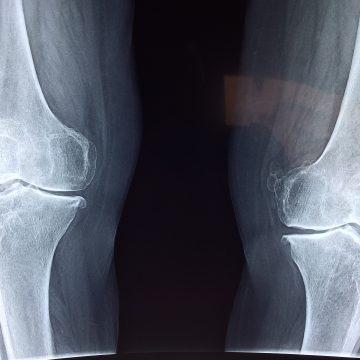 Un tipo de célula ósea detiene el crecimiento de la…