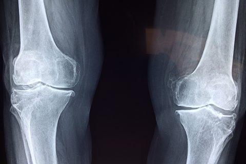Un tipo de célula ósea detiene el crecimiento de la metástasis en huesos