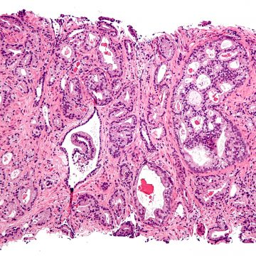 Los estímulos nerviosos noradrenérgicos aceleran el crecimiento del tumor prostático