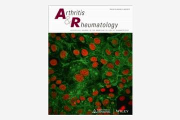 Abnormal B Cell Development in Systemic Lupus Erythematosus