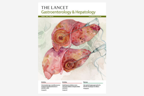 Chromoendoscopy versus autofluorescence imaging for neoplasia detection in patients with longstanding ulcerative colitis (FIND-UC): an international, multicentre, randomised controlled trial