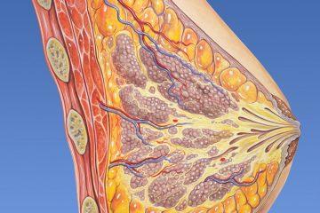 Identificar quién no necesita quimio, último gran avance en cáncer de mama