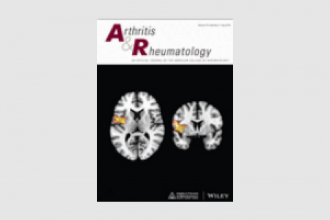 """Functional Connectivity: Dissecting the Relationship Between the Brain and """"Pain Centralization"""" in Rheumatoid Arthritis"""