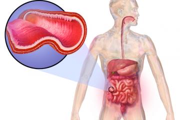 Nueva molécula española para mejorar la terapia de Crohn y colitis ulcerosa