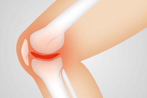 Expertos resaltan que los fármacos sysadoa mejoran la capacidad funcional y la calidad de vida en artrosis