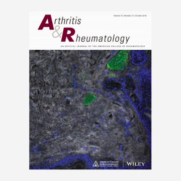 Influence of Disease Activity in Rheumatoid Arthritis on Radiographic Progression…