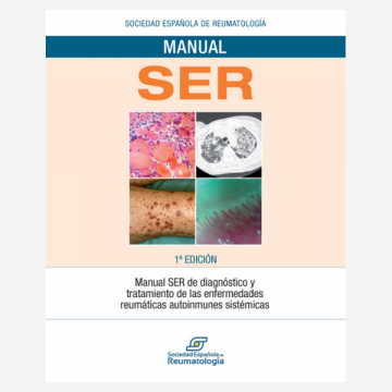 Manual SER de diagnóstico y tratamiento de las enfermedades reumáticas…