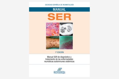 Manual SER de diagnóstico y tratamiento de las enfermedades reumáticas autoinmunes sistémicas