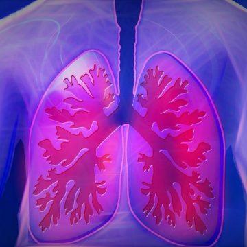 Oncólogos prueban nuevo tratamiento con inmunoterapia que aumenta la supervivencia…