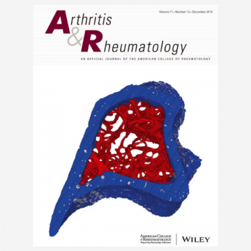 Advancing rheumatoid arthritis synovial biopsy analysis: one B cell at…
