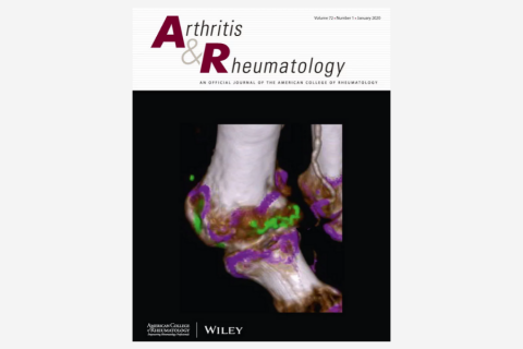 A Neutrophil Activation Biomarker Panel in Prognosis and Monitoring of Patients With Rheumatoid Arthritis