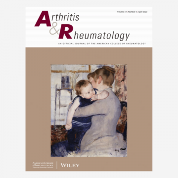 Rheumatoid Arthritis Morning Stiffness Is Associated With Synovial Fibrin and…