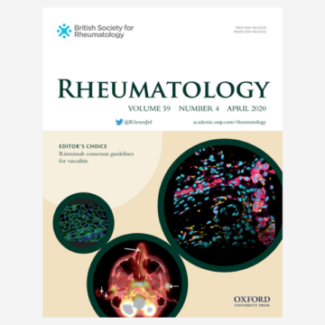 Rheumatoid arthritis with atypical neck pain and dysphagia