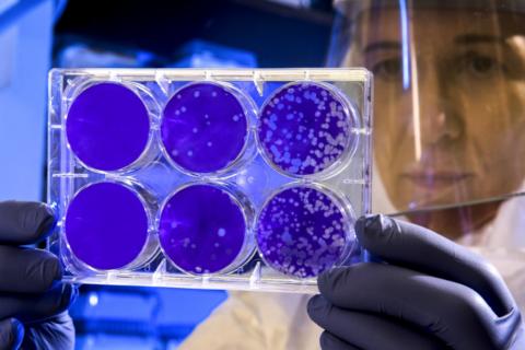 Tres hospitales madrileños lideran «el mayor estudio de Europa» sobre el virus en los pacientes hematológicos
