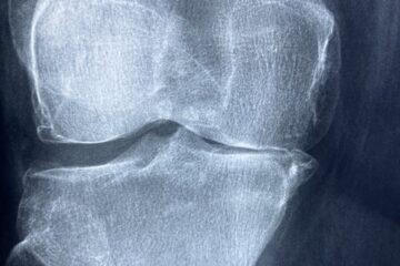 Farmacia comunitaria y hospitalaria, el tándem perfecto para mejorar la AF en artritis…