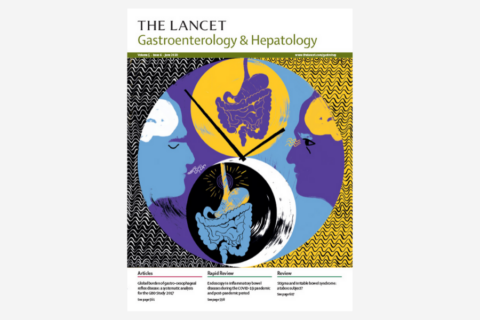 Risk of colorectal cancer incidence and mortality after polypectomy: a Swedish record-linkage study