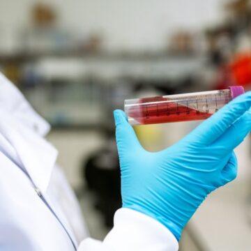 Un análisis de sangre detecta el cáncer 4 años antes…