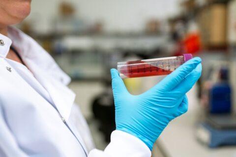 Un análisis de sangre detecta el cáncer 4 años antes de su aparición