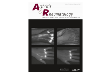Altered Lymphatic Vessel Anatomy and Markedly Diminished Lymph Clearance in Affected Hands of…